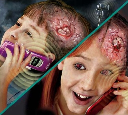 brain-cancer-cause